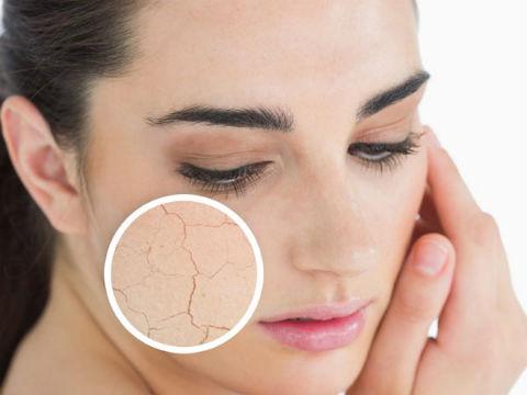 Thiếu nước là nguyên nhân khiến da bị tổn thương